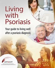 living with psoriasis